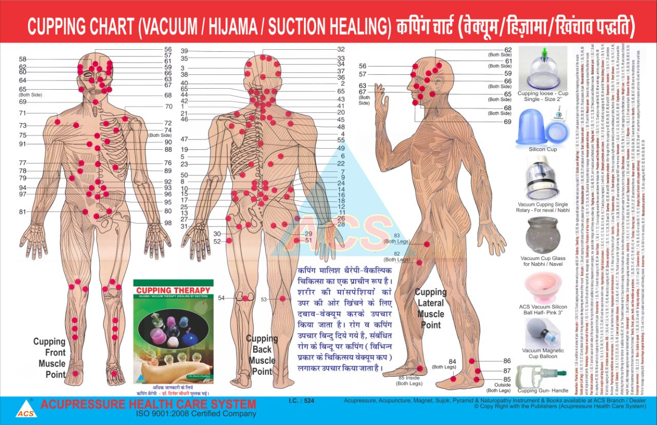 Cupping Therapy Chart - Vacuum / Hijama