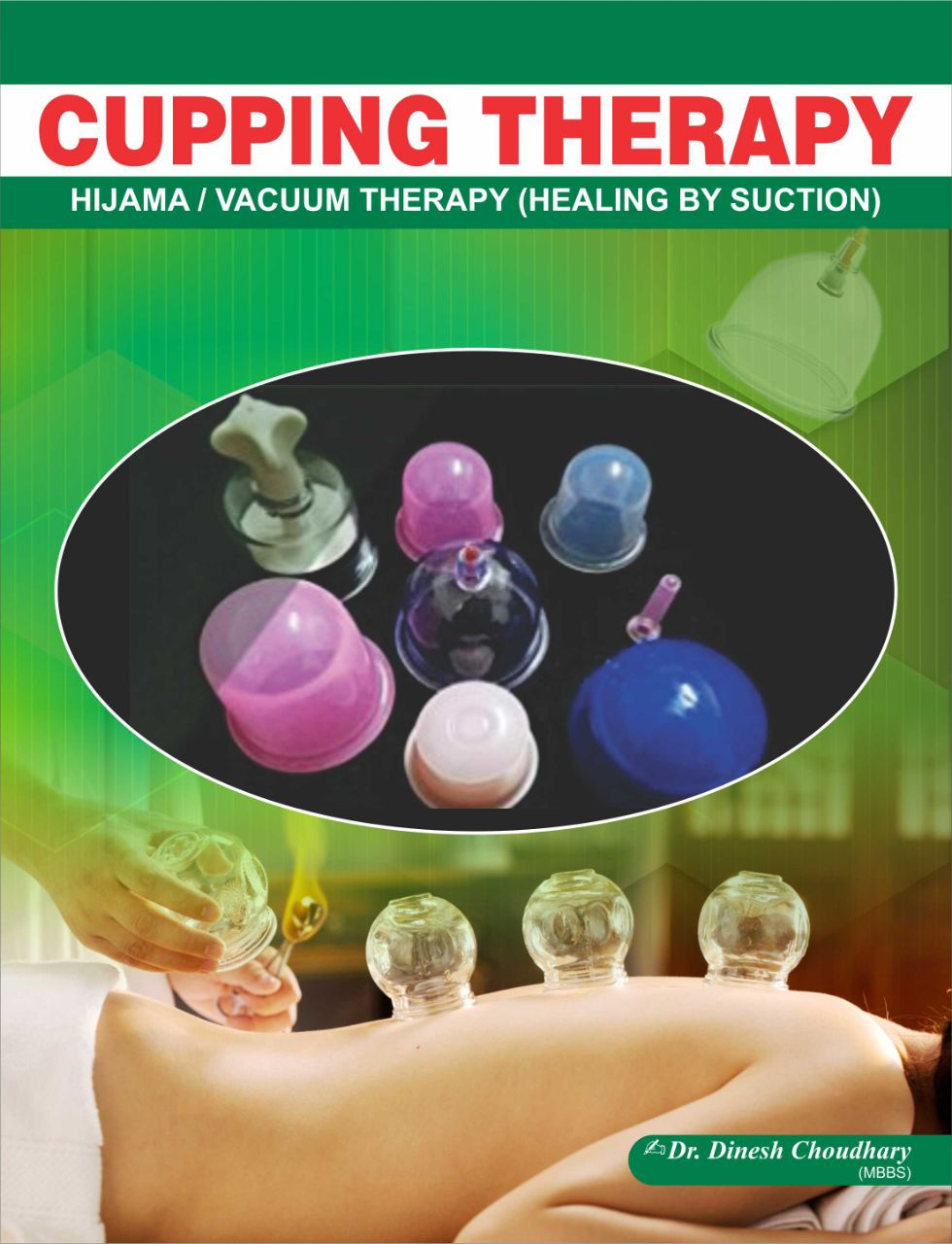 Cupping (Hijama/Vacuum) Therapy Book - Eng.