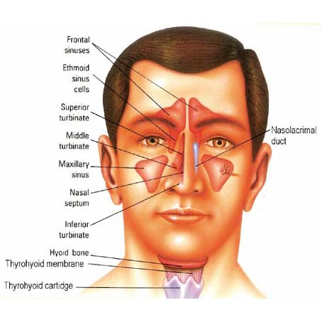 Sinusitis  - NJF