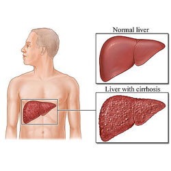 Disease of the Liver  -